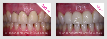 implant bridge woodgreen