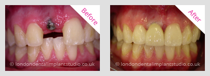 implant front teeth