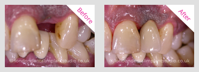 implant with crown
