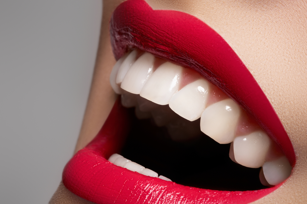 Teeth Whitening in Wood Green