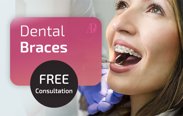 dental Braces offer