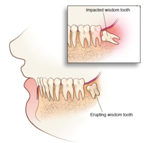 wisdom tooth pain wood green